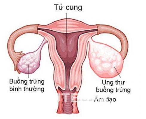 Chữa Ung Thư Buồng Trứng Bằng Thuốc Fucoidan - 1
